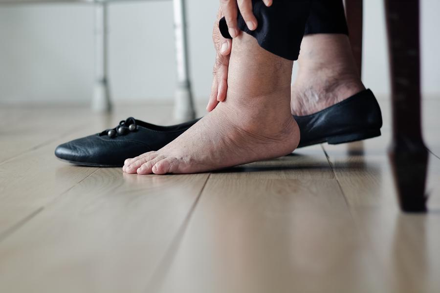 infezione piedi gonfi