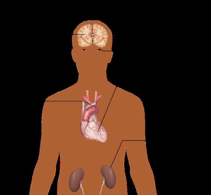 rischi ipertensione