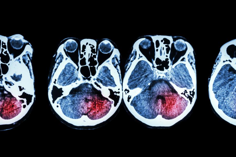 aree del cervello danneggiate