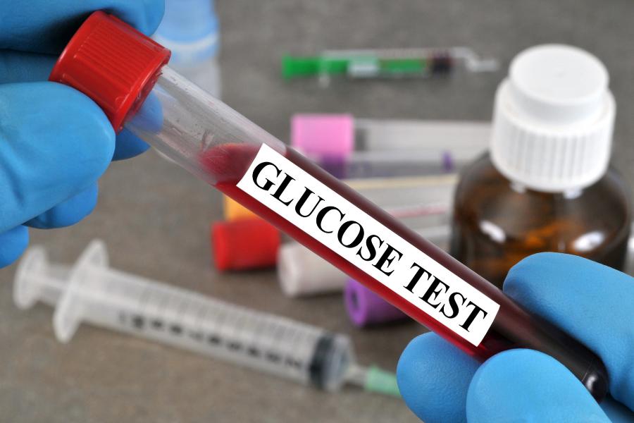 esami glicemia